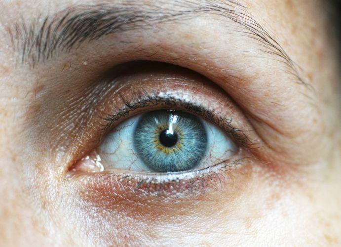 El envejecimiento prematuro es uno de los síntomas más evidentes de la piel seca